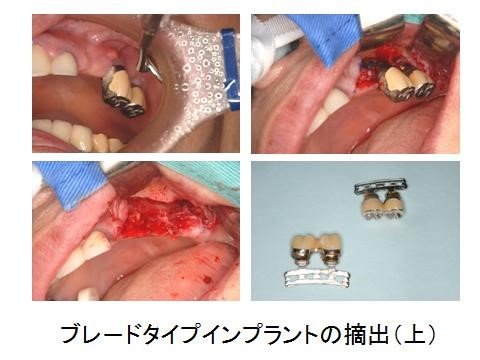 about-implant_img14
