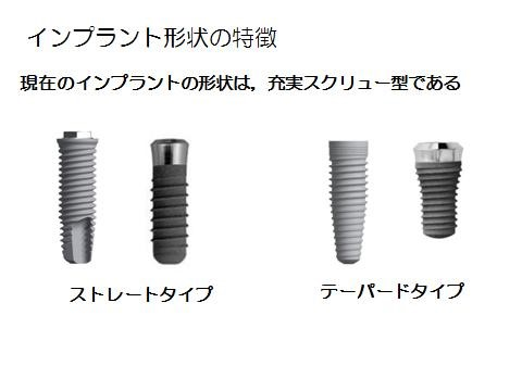 about-implant_img15