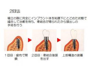 start-implant_img02