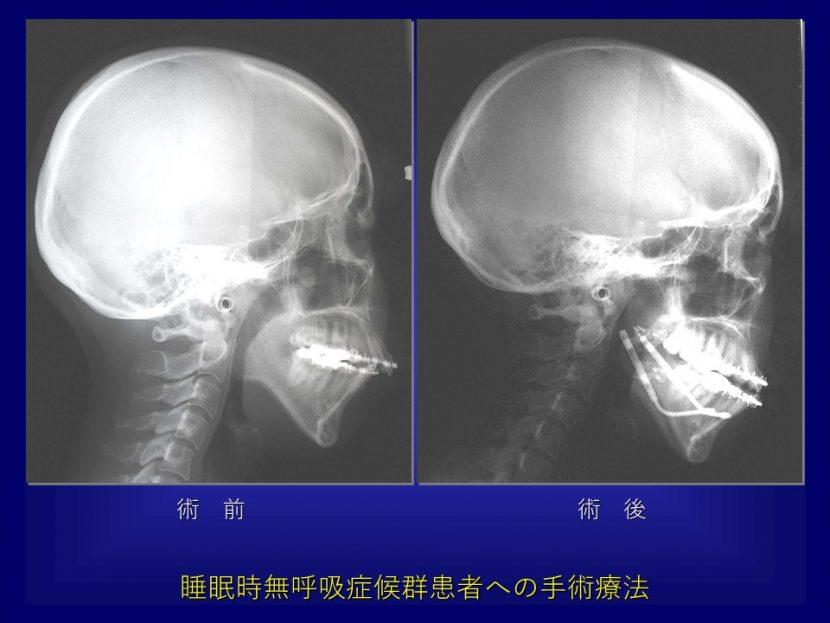 いびき・睡眠時無呼吸症候群の歯科口腔外科的治療 新谷悟の歯科口腔外科塾