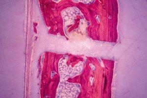 endoscopic-surgery_img04