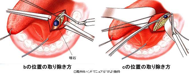 endoscopic-surgery_img08