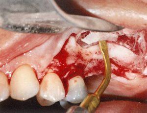 endoscopic-surgery_img14