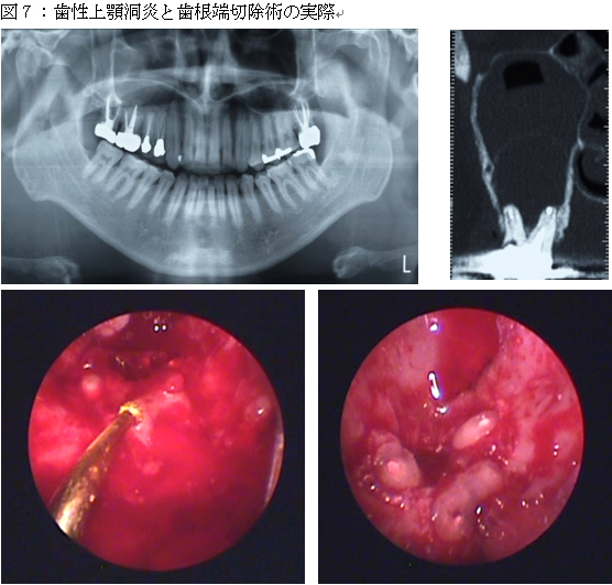 endoscopic-surgery_img17