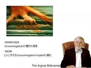 osseointegration_img01