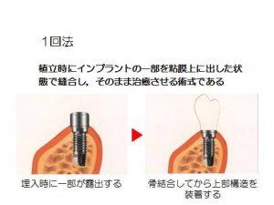 start-implant_img01