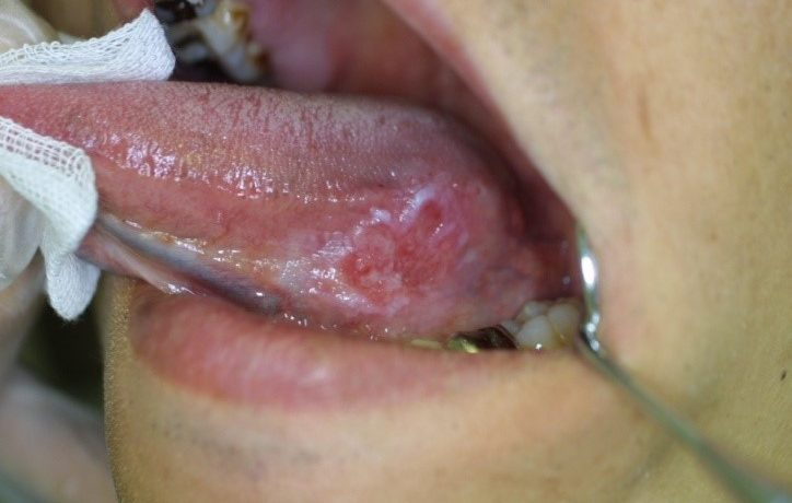 患者さんに教える口腔癌・前がん病変セルフチェック法