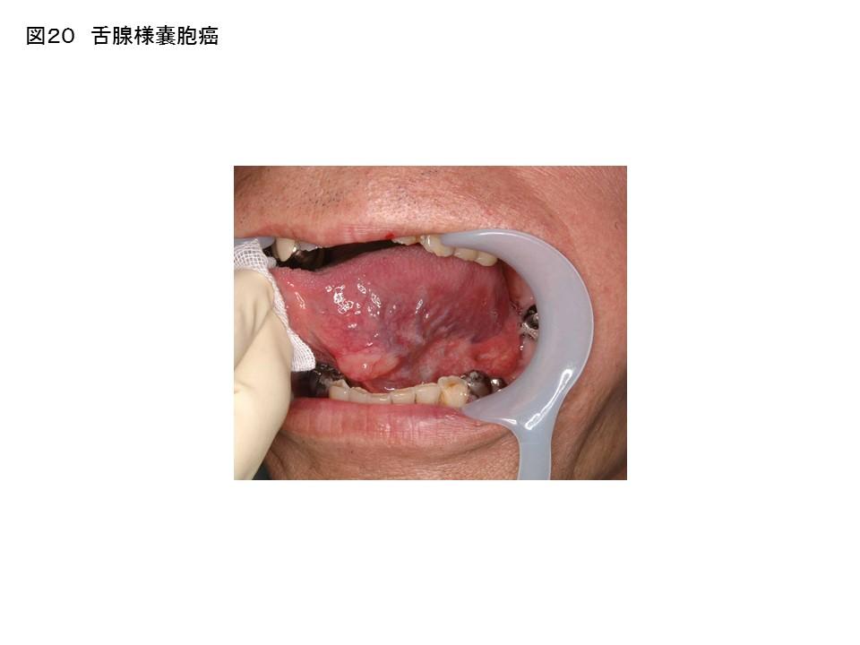 ステージ 中 1 癌 咽頭 中咽頭癌ステージ2 HPVp16です