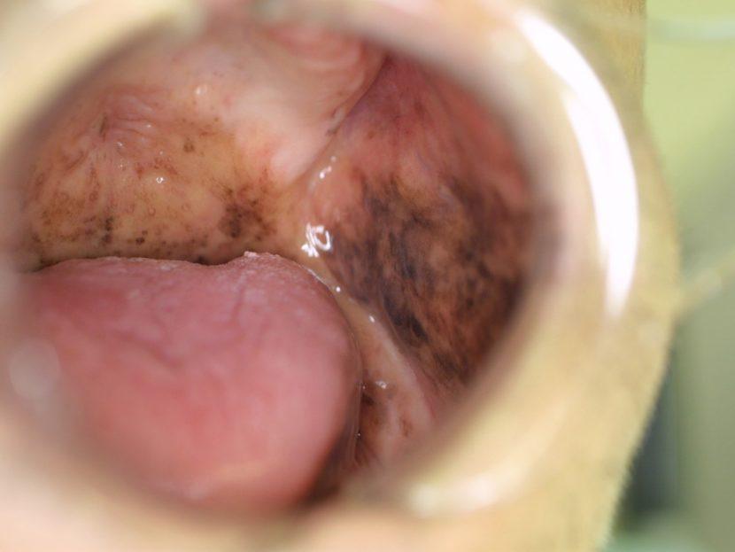 内 血腫 口腔