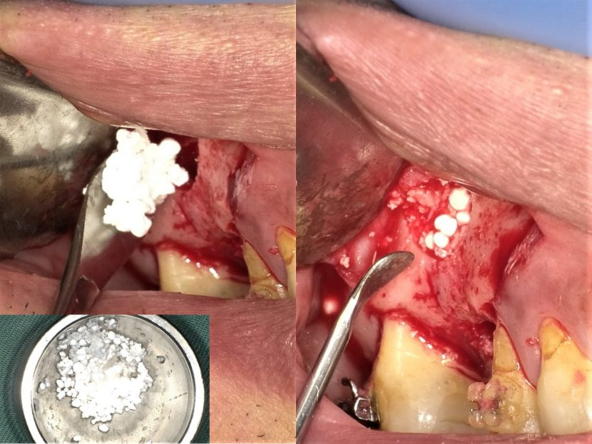 サイナスリフトにて骨造成したインプラント症例ケース05|右側 ...